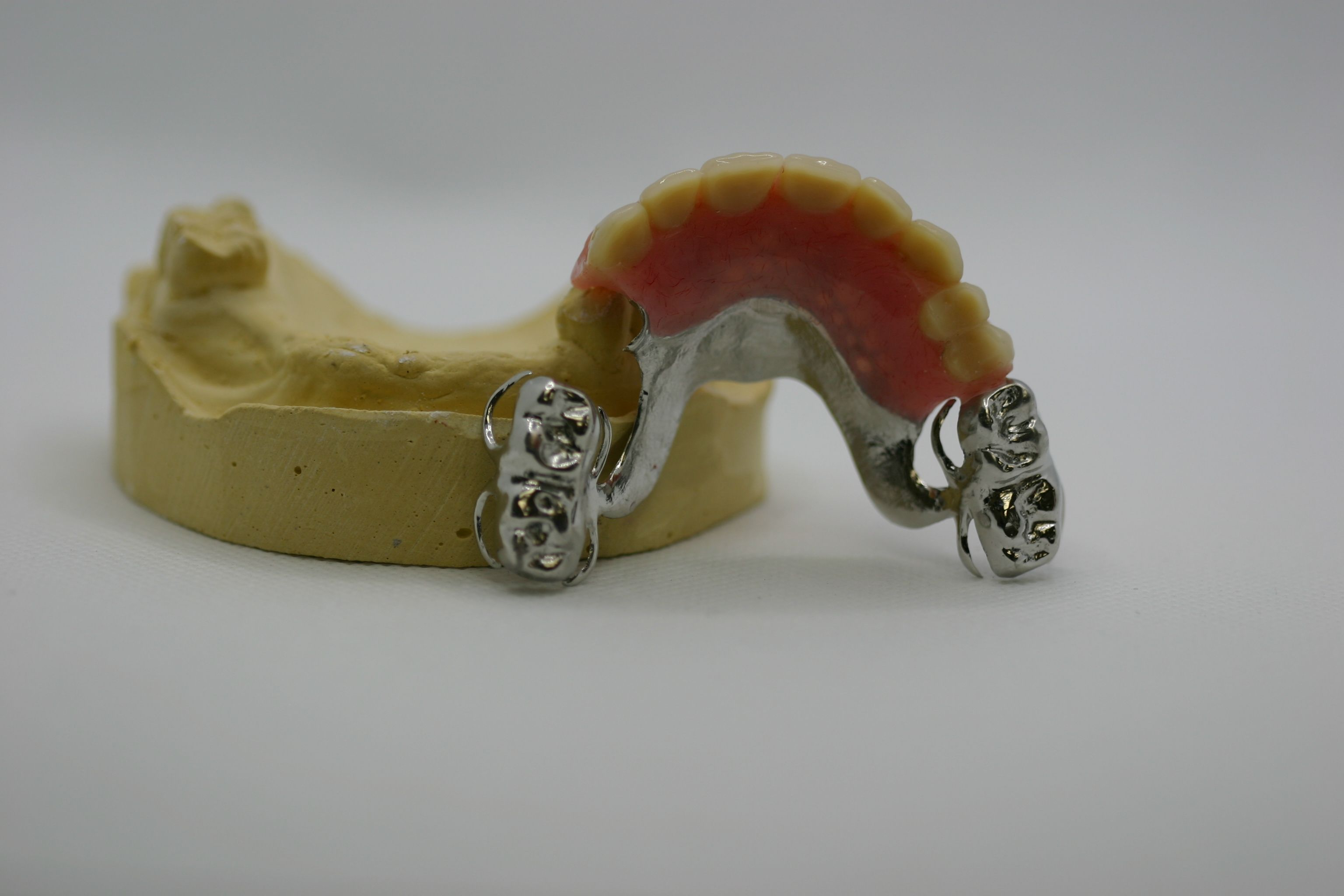 Partial with Metal Onlays