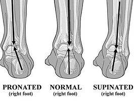 pronated-supinated-foot (1)