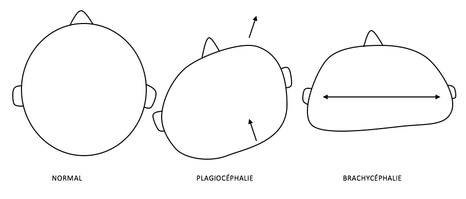 méplat cranien plagiocéphalie brachycéphalie ostéopathe tours