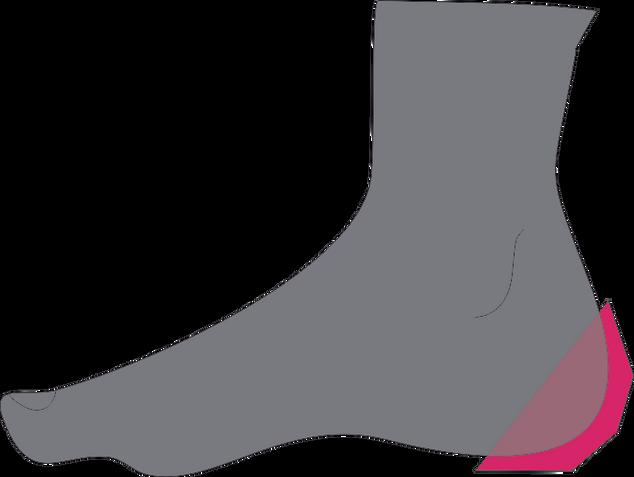 нога2.tif