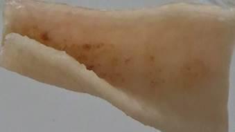 Burns after acid reaction