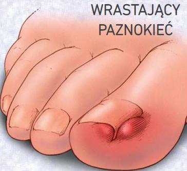 Bolesny problem - wrastający paznokieć