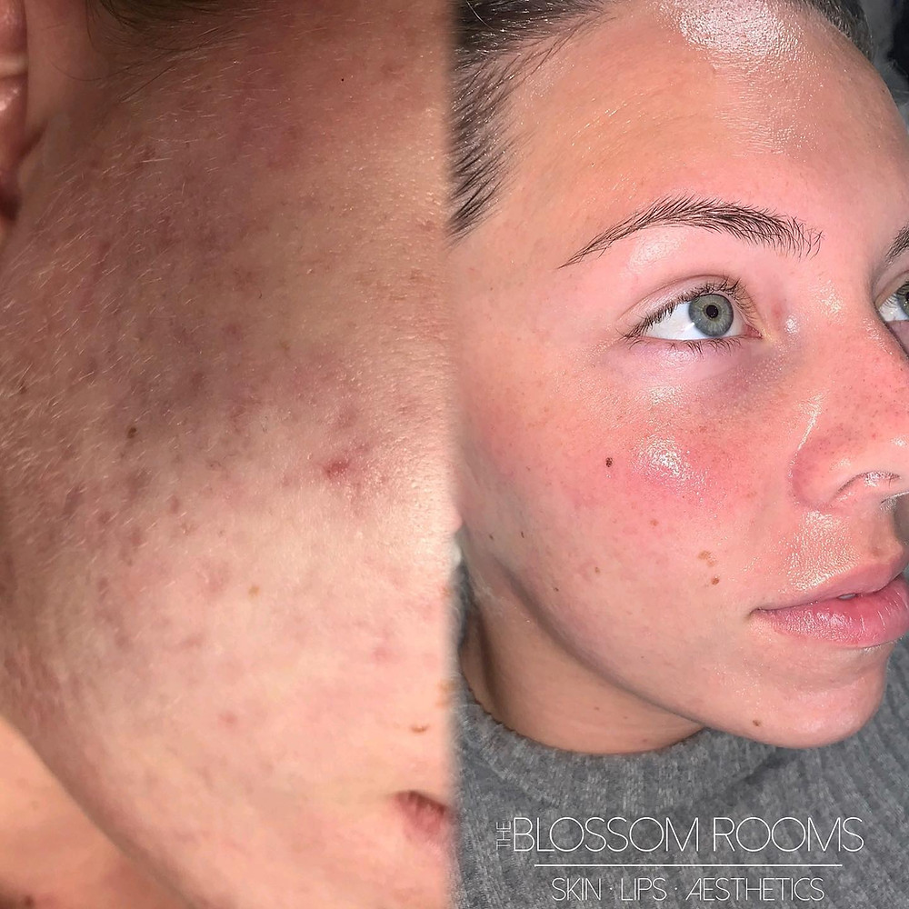 Dermapen Microneedling results from The Blossom Rooms