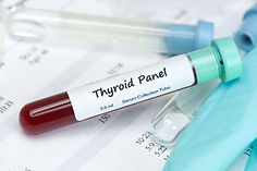 ThyroidTest_38663266_M.jpg