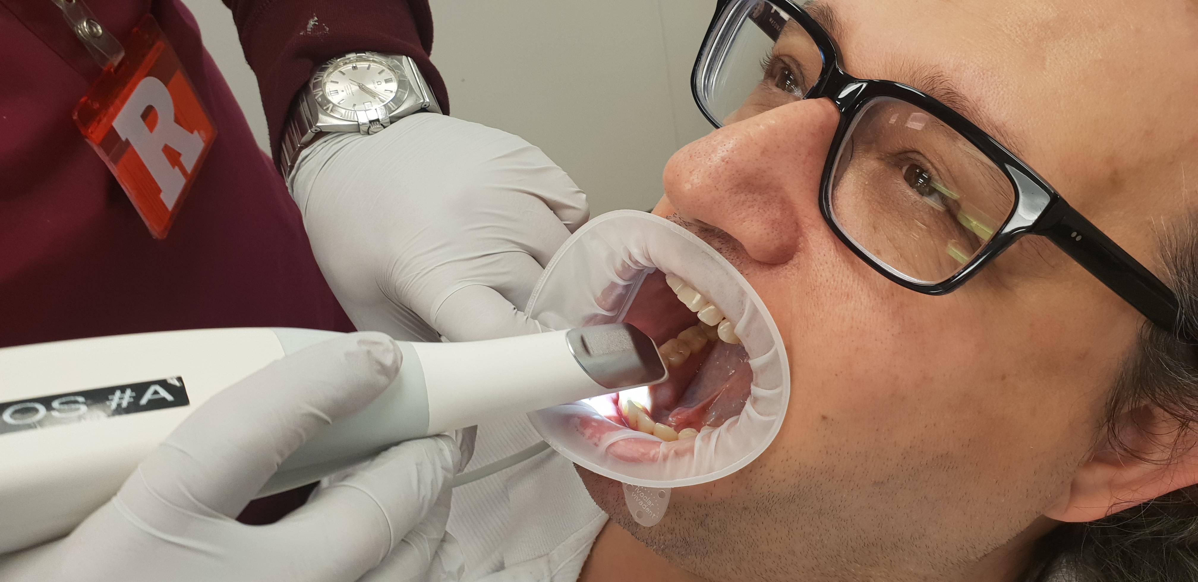Intral oral scanning
