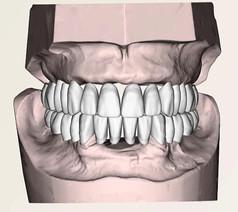 Tooth Setup