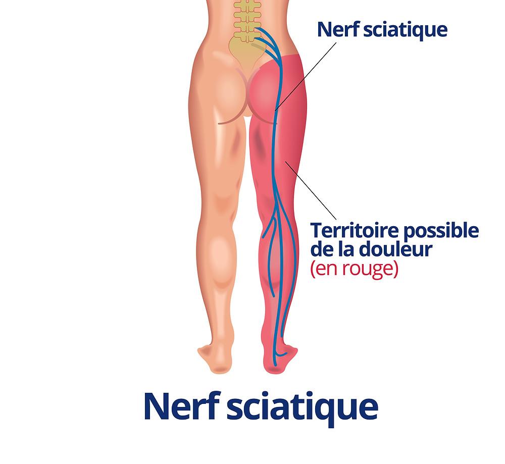 Nerf sciatique et ostéopathe lyon