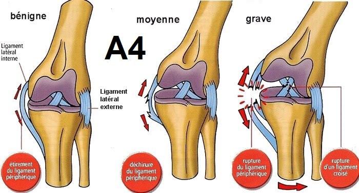 Les stades des entorses du genou / ostéopathie lyon