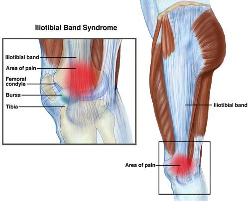 Le syndrome de l'essuie glace ostéopathie