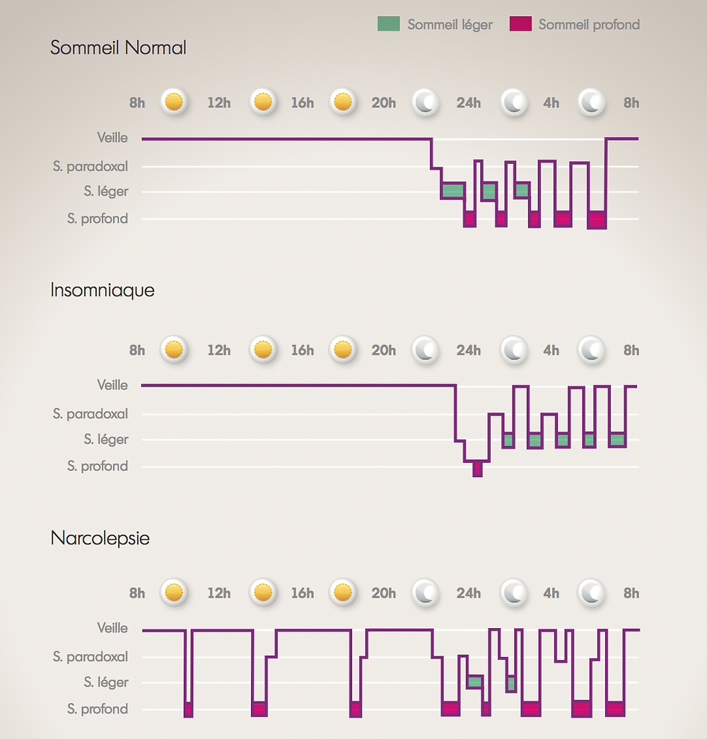 Pathologies du sommeil