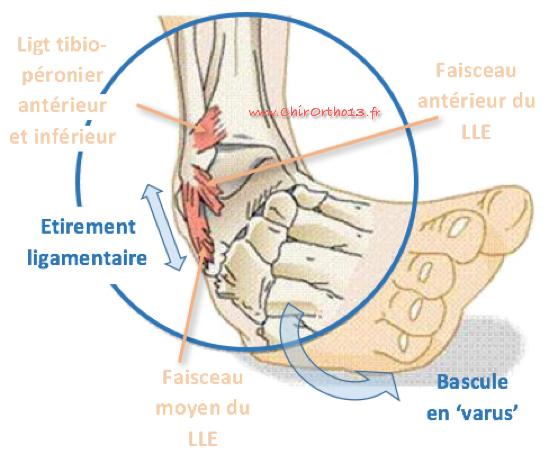 Mécanisme d'entorse externe de cheville / ostéopathie lyon