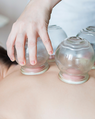 Cupping2.png
