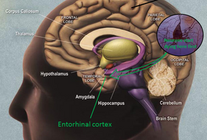 Grafikken her viser et eksempel på en person, der har demenssygdommen Alzheimers. Illustration: National Institute of Aging/Wikimedia Commons