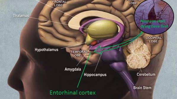 En degenerativ sygdom som Alzheimers rammer den entorhinale cortex først - området, der styrer vores indlæring og hukommelse. Illustration: National Institute of Aging/Wikimedia Commons