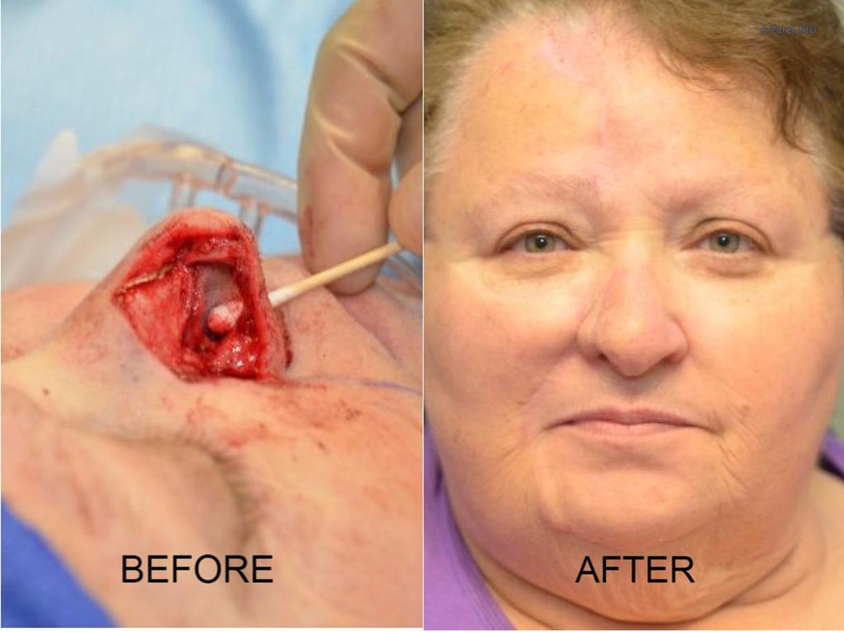 Nose Reconstruction