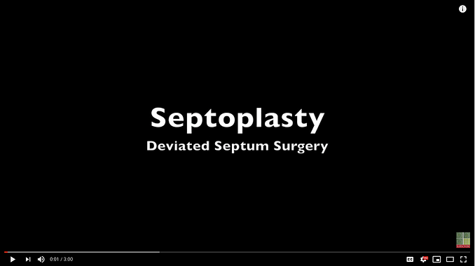Learn more about cosmetic rhinoplasty, nose job, nose reshaping surgery, or septoplasty.