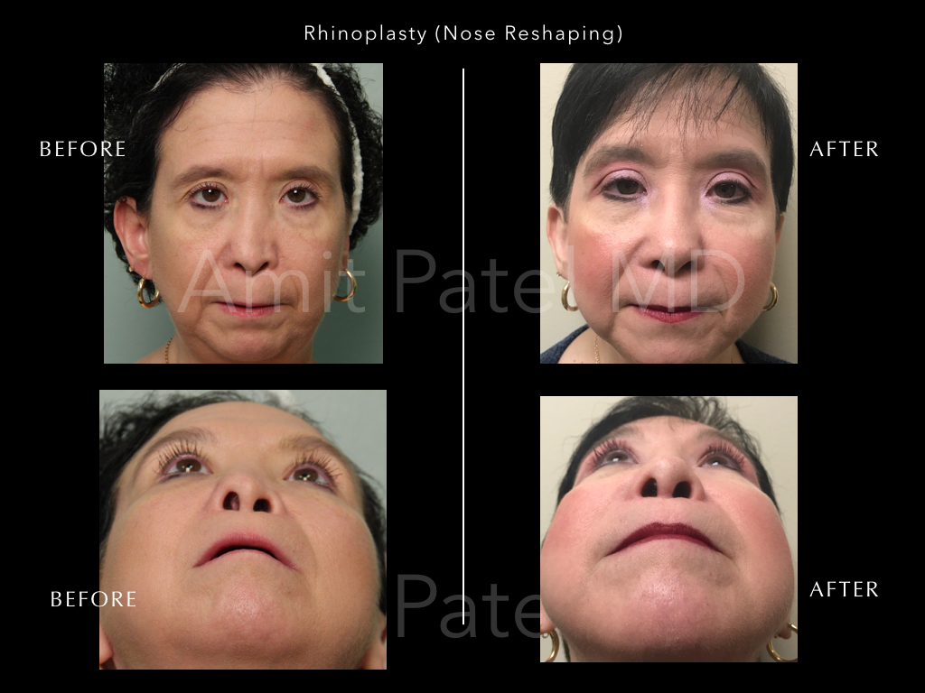 Revision Rhinoplasty - Nose Job