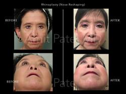 Revision Rhinoplasty - Nose Job