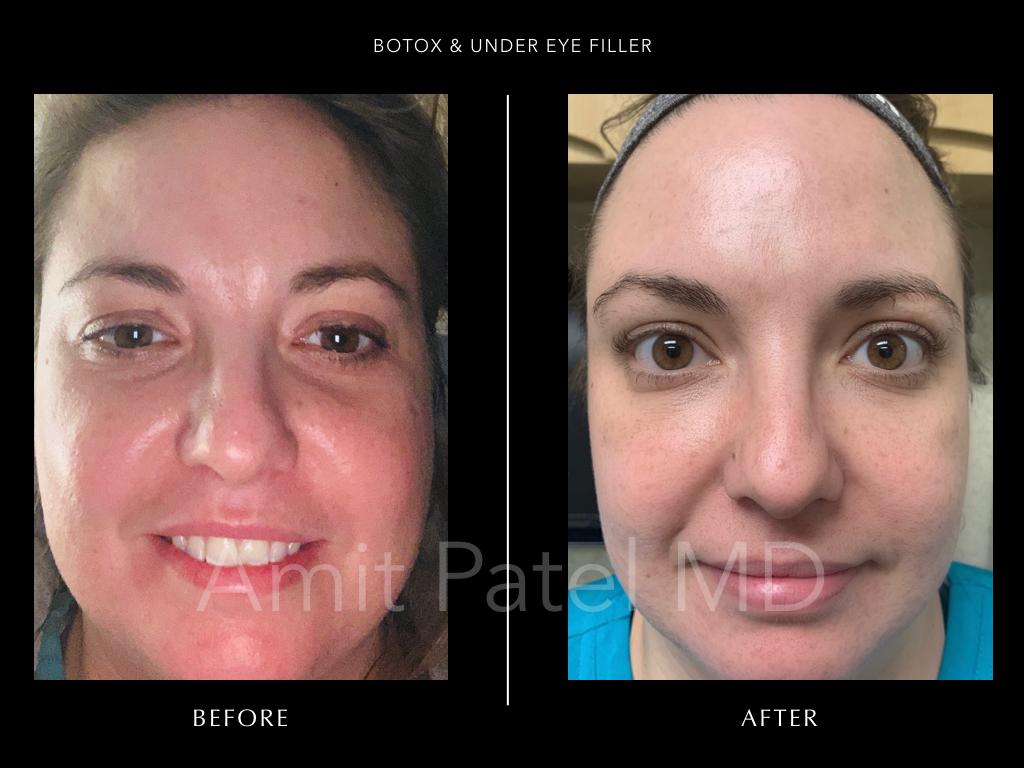 Botox & Under Eye Filler