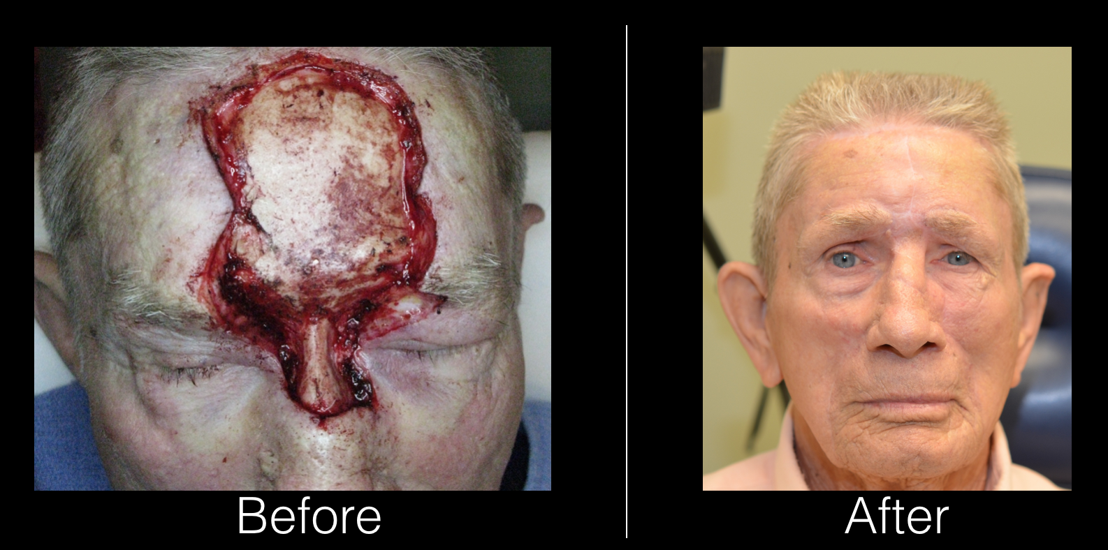 Forehead Reconstruction