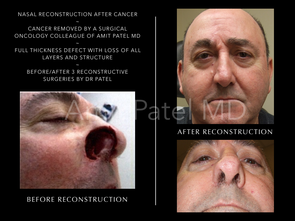 Nasal Cancer Reconstruction