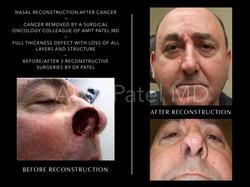 Nasal Cancer Reconstruction