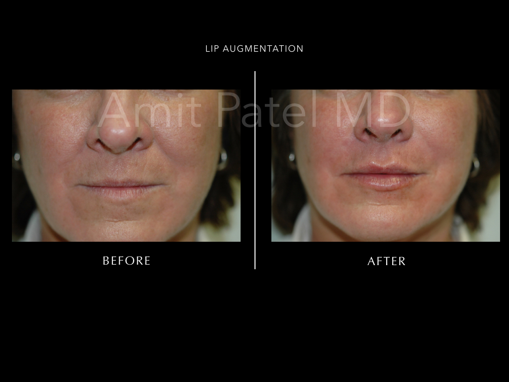 Lip Augmentation ~ Lip Filler