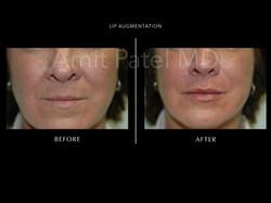 Lip Augmentation ~ Lip Filler