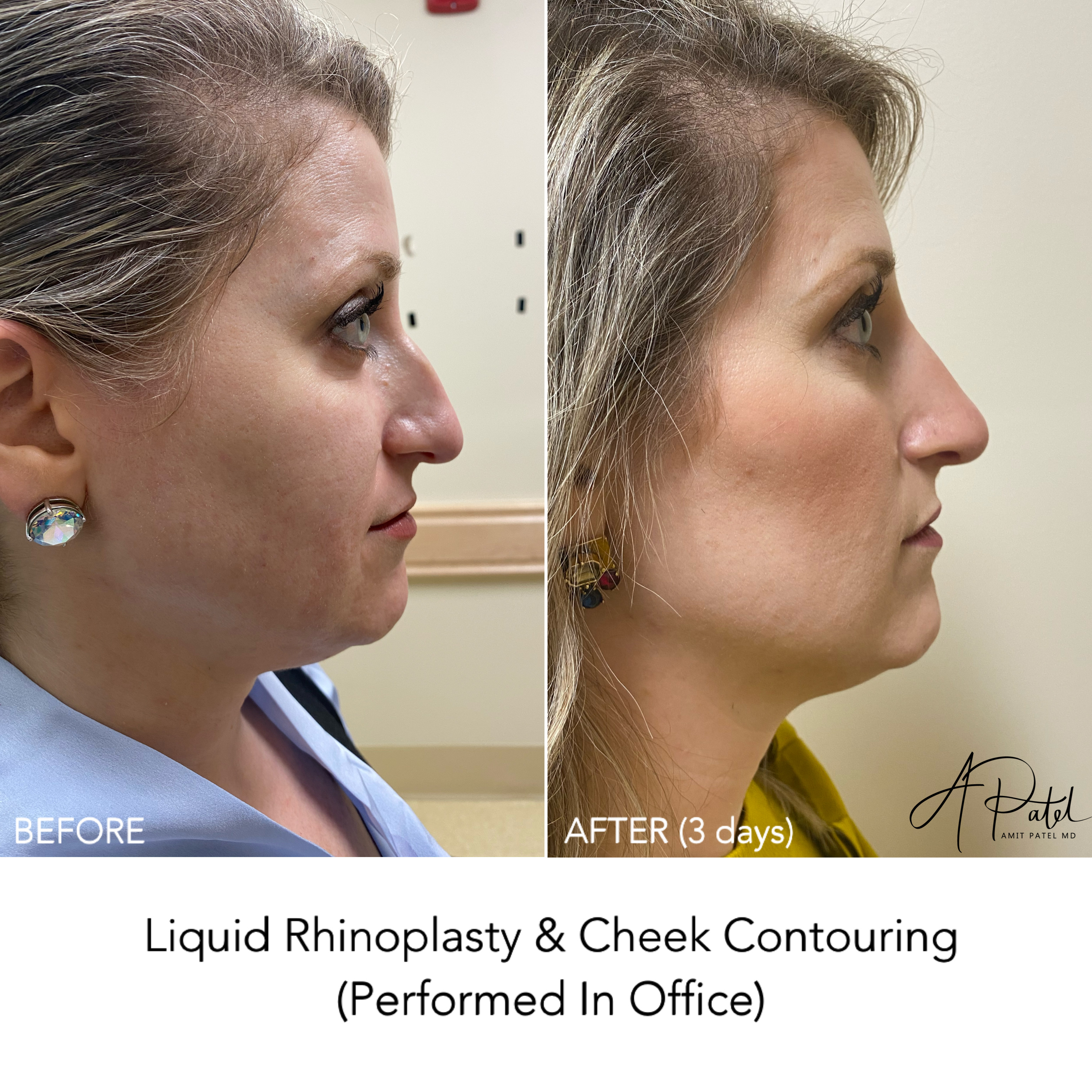Nonsurgical Rejuvenation (liquid rhinoplasty and cheek filler)