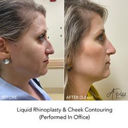 Nonsurgical Rejuvenation (liquid rhinoplasty and cheek filler)