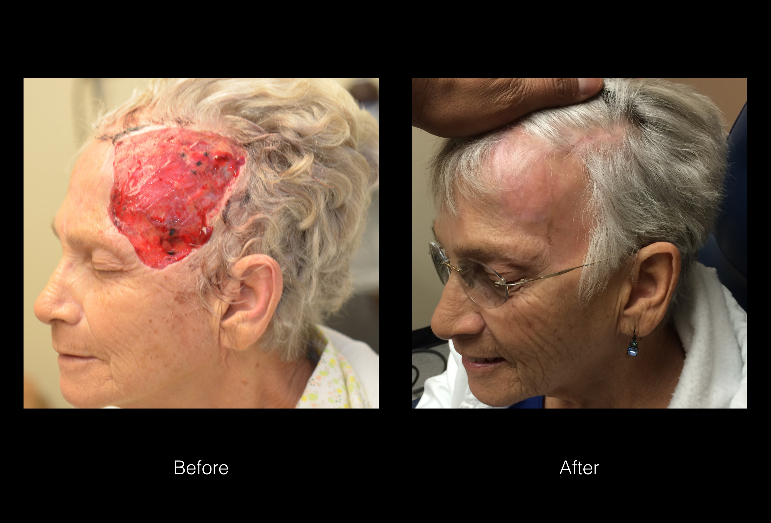 Cancer Reconstruction