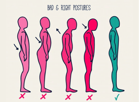 Why Is Posture So Important?