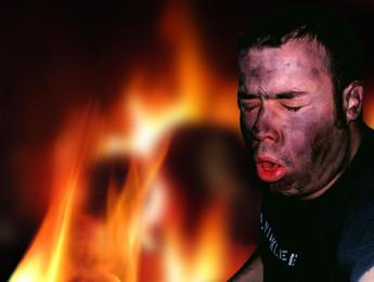 Carbon Monoxide Poisoning.Smoke Inhalation