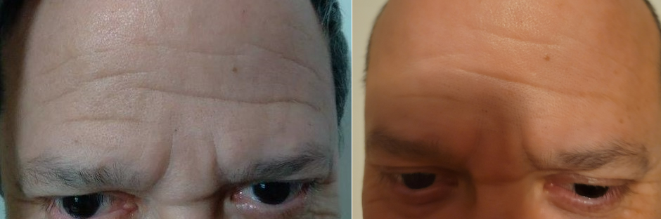 Forehead Frotox 5 Sessions