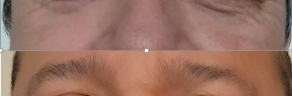 Eye Wrinkles 3 Sessions