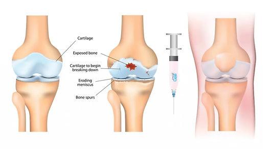 prp-injections-for-arthritis.jpg