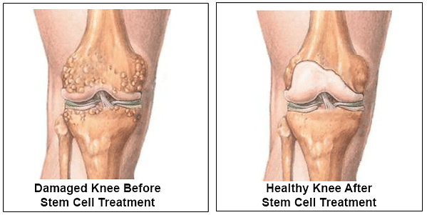 stem-cells-for-pain-before-and-after.png