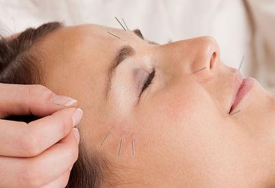 acupuntura-estetica-facial.jpg