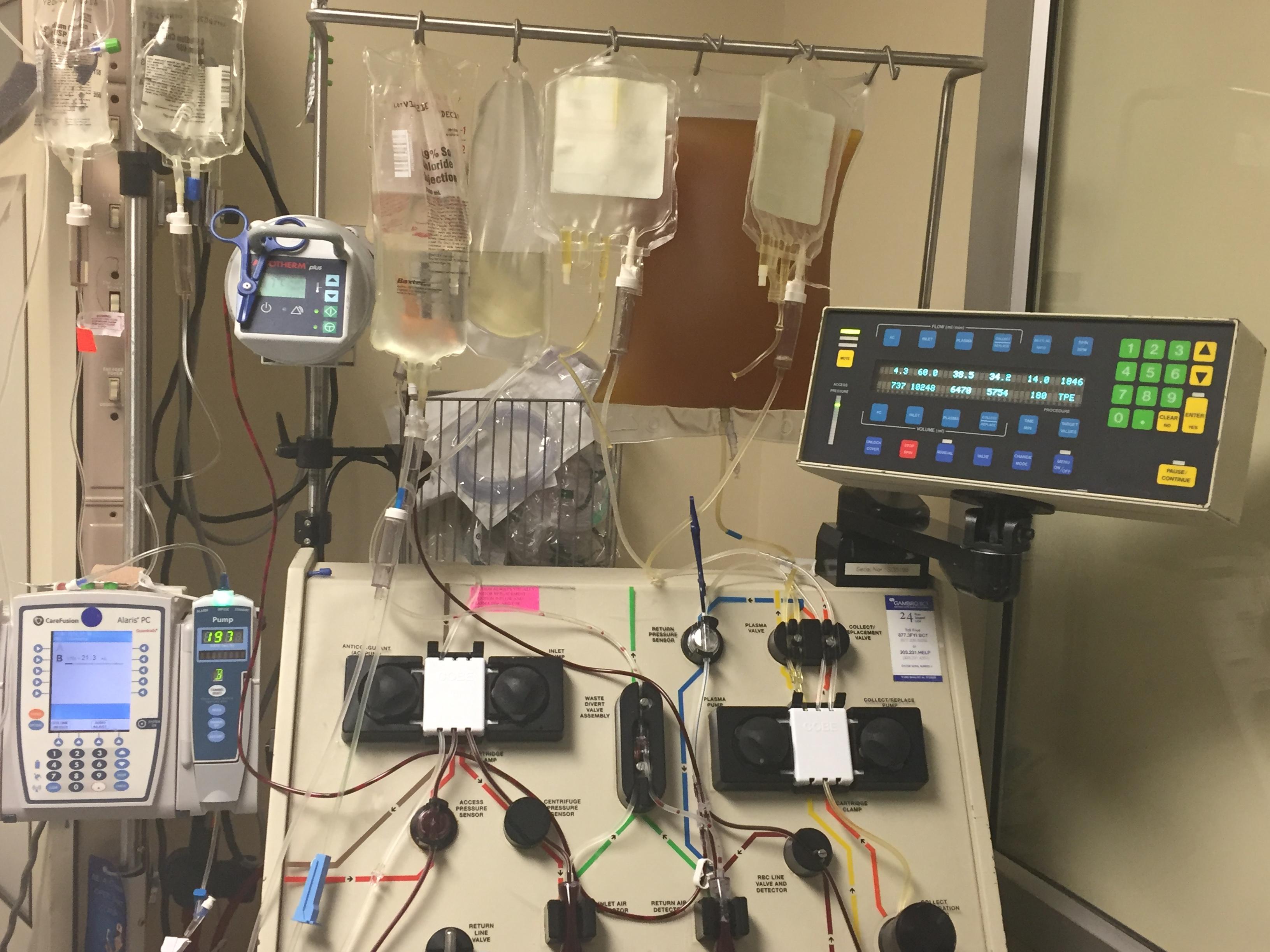 Plasmapheresis apheresis machine