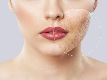 ACNE SCARS: a big problem with a feasible solution