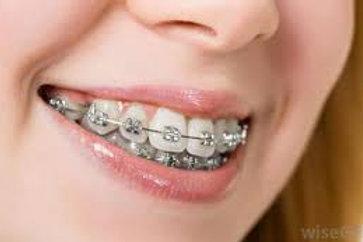 PEARSON Vue McQs In Othodontics and Dentofacial Orthopedics