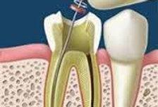 Prometric + PEARSON Vue McQs in Endodontics