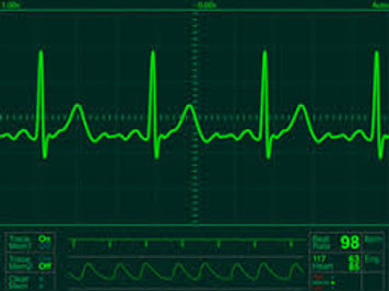 Prometric  McQs in Electrocardiography(ECG)