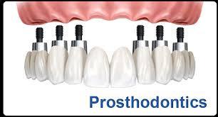 Prometric + PEARSON Vue McQs  in Prosthodontics