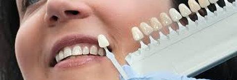 Prometric + PEARSON Vue McQs  in Restorative Dentistry