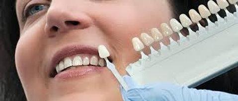 Prometric  McQs  in Restorative Dentistry