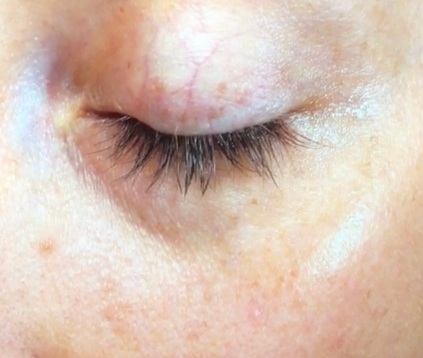 fine lines and wrinkles after using skinceuticals