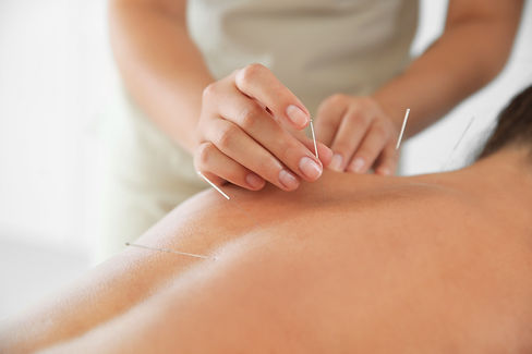 Young woman undergoing acupuncture treatment in salon, closeup.jpg