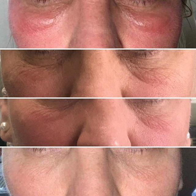 @purehairbeautydalby - 2 treatments in 2