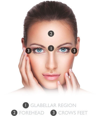 Anti Wrinkle Treatment - 1 Area